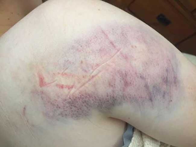 HAITI: Une ressortissante américaine enceinte violamment brutalisée par des bandits  à Petit-Goâve