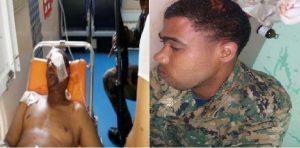 Monde: Deux militaires dominicains attaqués par des haïtiens illégaux
