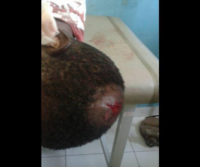 Un chauffeur de Taxi-Moto bastonné par deux policiers à Jacmel