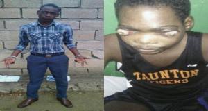 Haiti: Appel à la solidarité en faveur de Johnny Baldé atteint d'un cancer