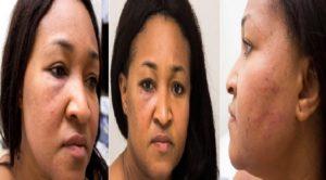 Haiti: La mairesse de Tabarre Nice Simon sévèrement battue par son concubin