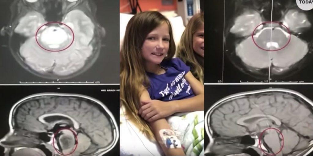 Monde: : La tumeur incurable dans le cerveau d'une fillette disparaît sans aucune explication médicale