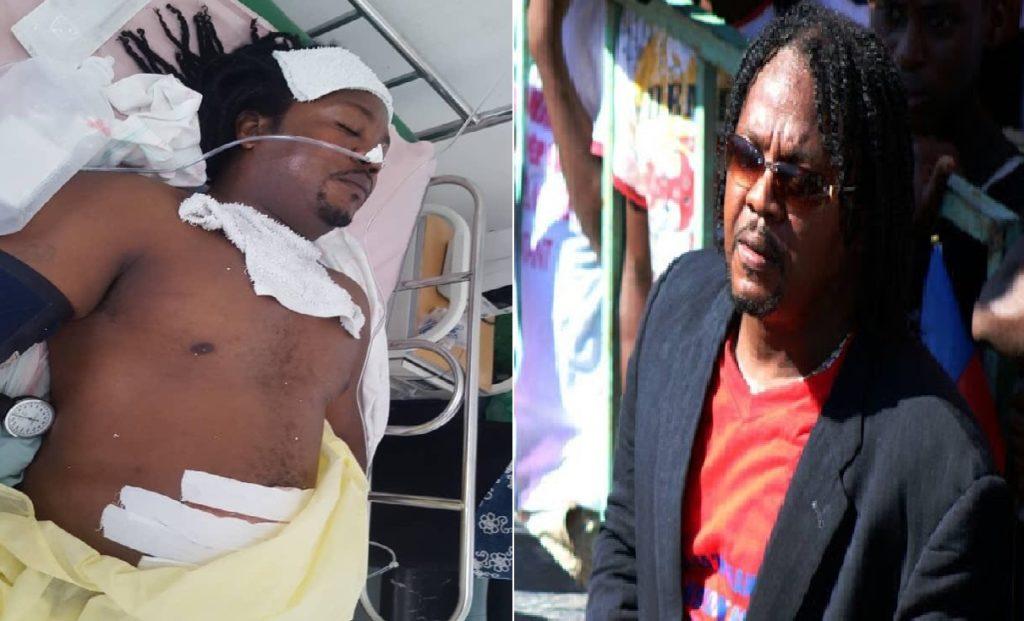 """Haiti: L'ancien Chef du groupe armé """"Fwon Rezistans"""", Ti Will,  blessé par balles"""
