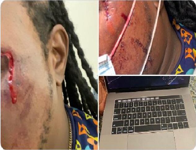 Monde: Tony Mix blessé au visage lors d'échauffourées dans un programme culturel